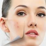 Каким должен быть уход за кожей в постпилинговый период?