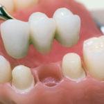 максимум-двух-зубов-и-55-150x150 Восстановление зубов. Зубные коронки