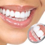 estetic-150x150 Эстетическая стоматология: методы лечения и особенности их применения