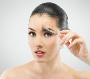 1406642540_156_shutterstock_103689623-300x261 Лечение акне на лице
