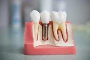 dentalnaya-implantaciya-zubov-e1512482702471-300x200 Установка брекет систем в стоматологии